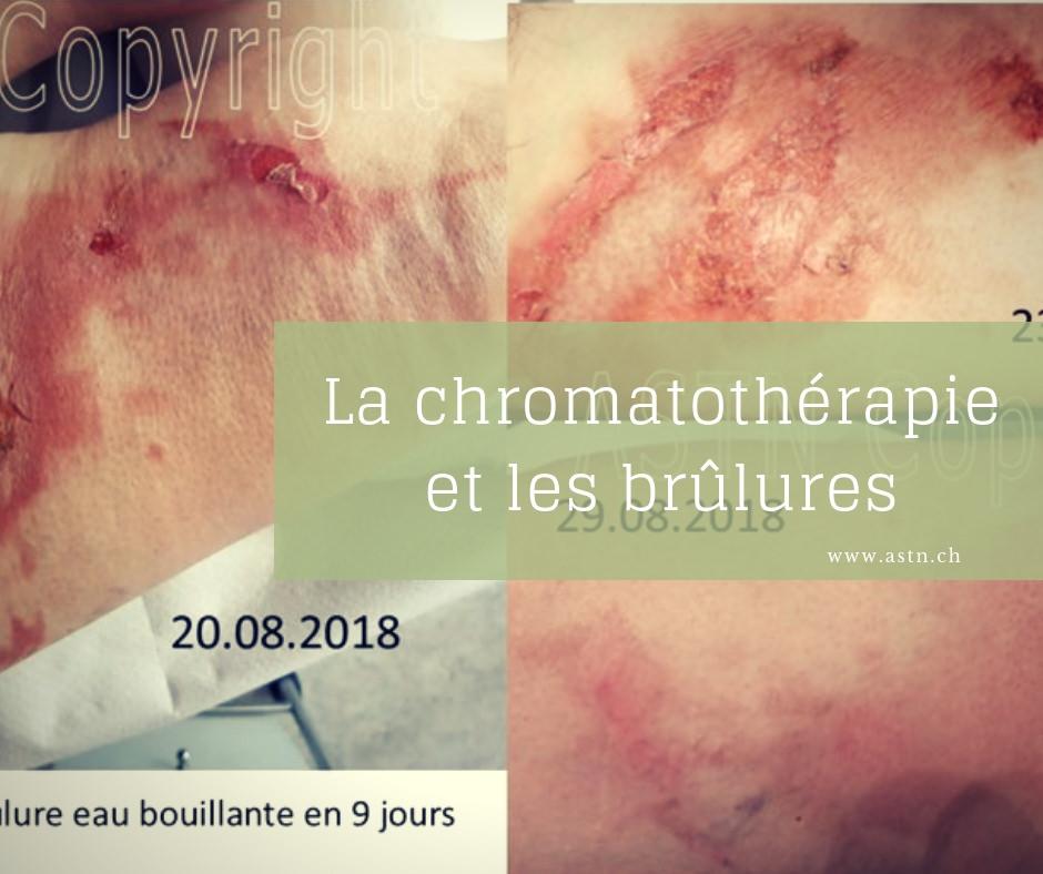 La chromathothérapie et les brûlures